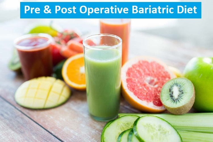 bariatric diet food and drinks